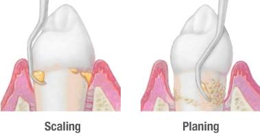 perio-scaling