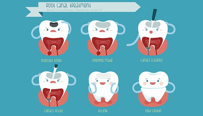 pain-after-root-canal