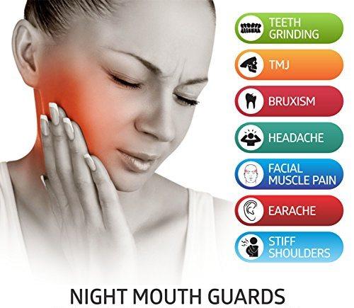 custom-mouthguards