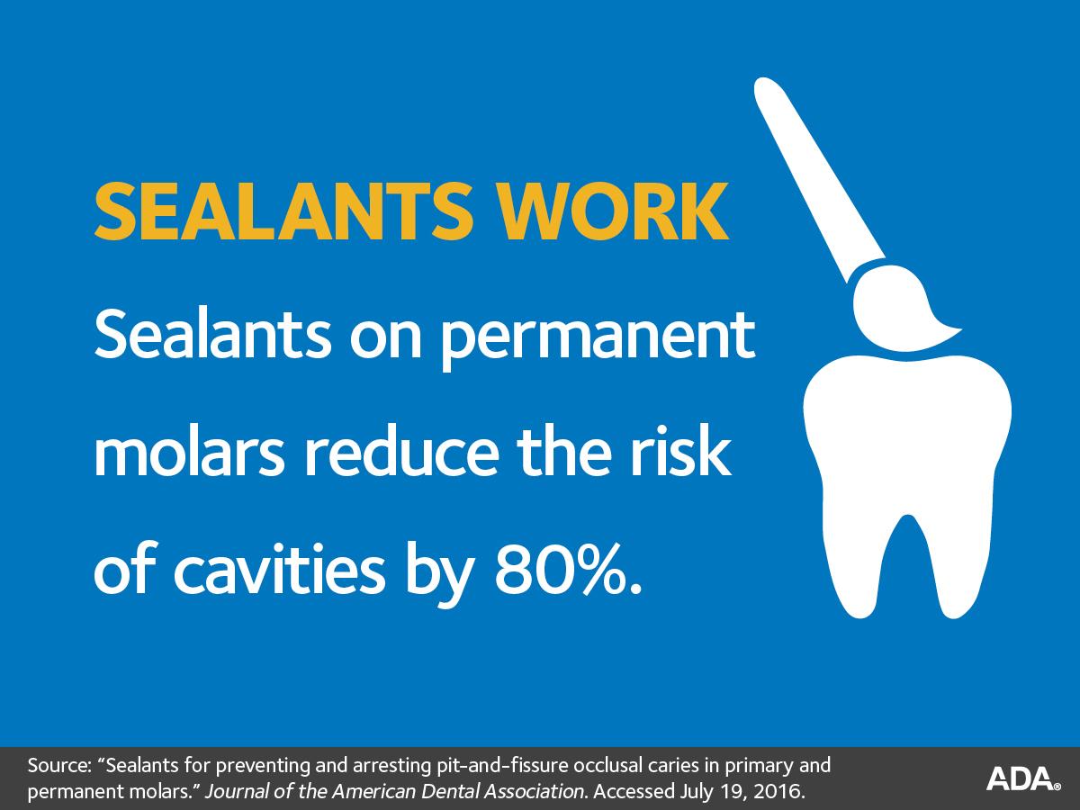 sealants-for-teeth