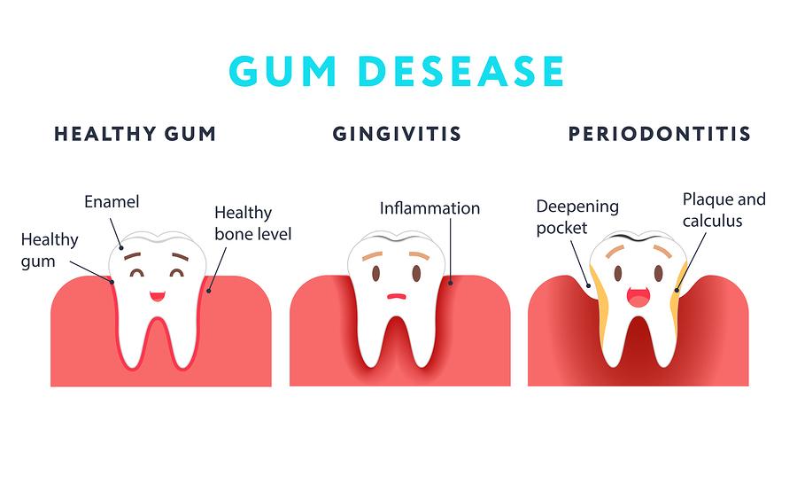 gum-disease