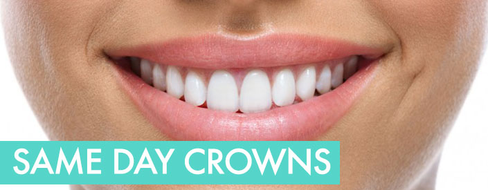 CEREC-same-day-crown
